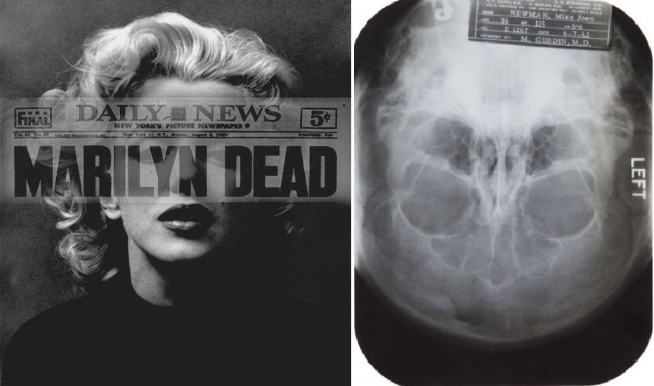 Montage : à gauche Marilyn Monroe,; à droite une des radios issues des rapports médicaux en vente aux enchères en Novembre 2013 par la maison Julien's Auctions